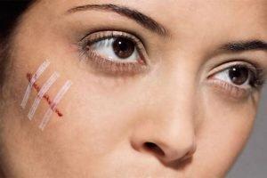 Удаление шрамов и рубцов